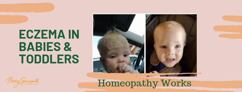 Healing-eczema